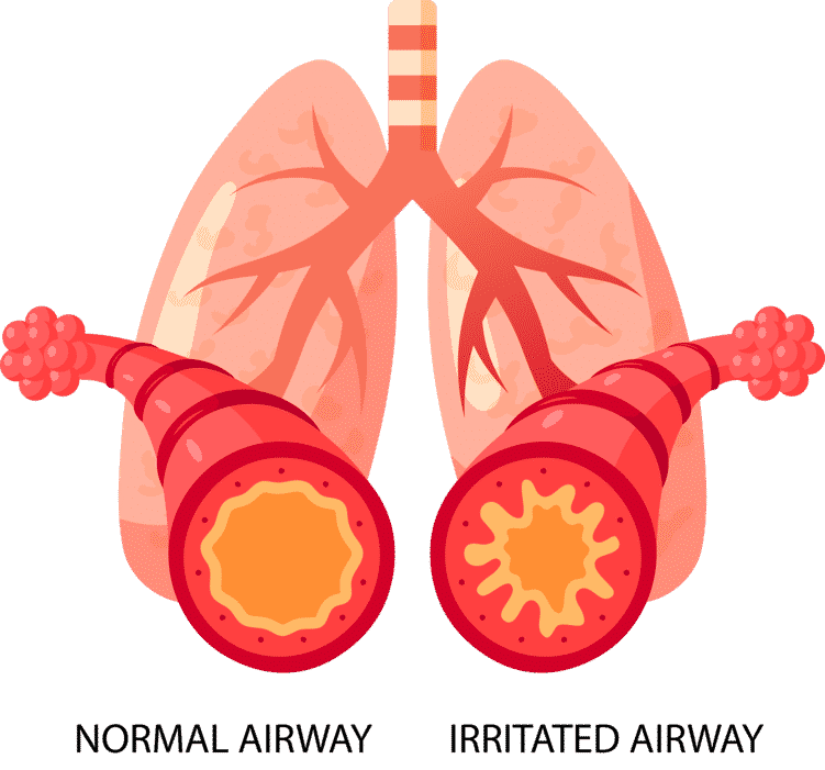 Asthma : Difference between normal airway and irritated airway